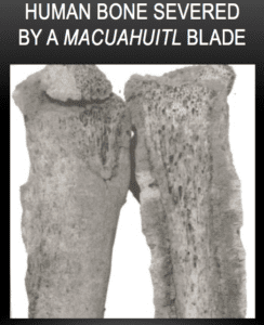 Human Bone Severed by a Macuahuitl Blade